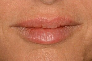 Fuller Lips with Volbella After