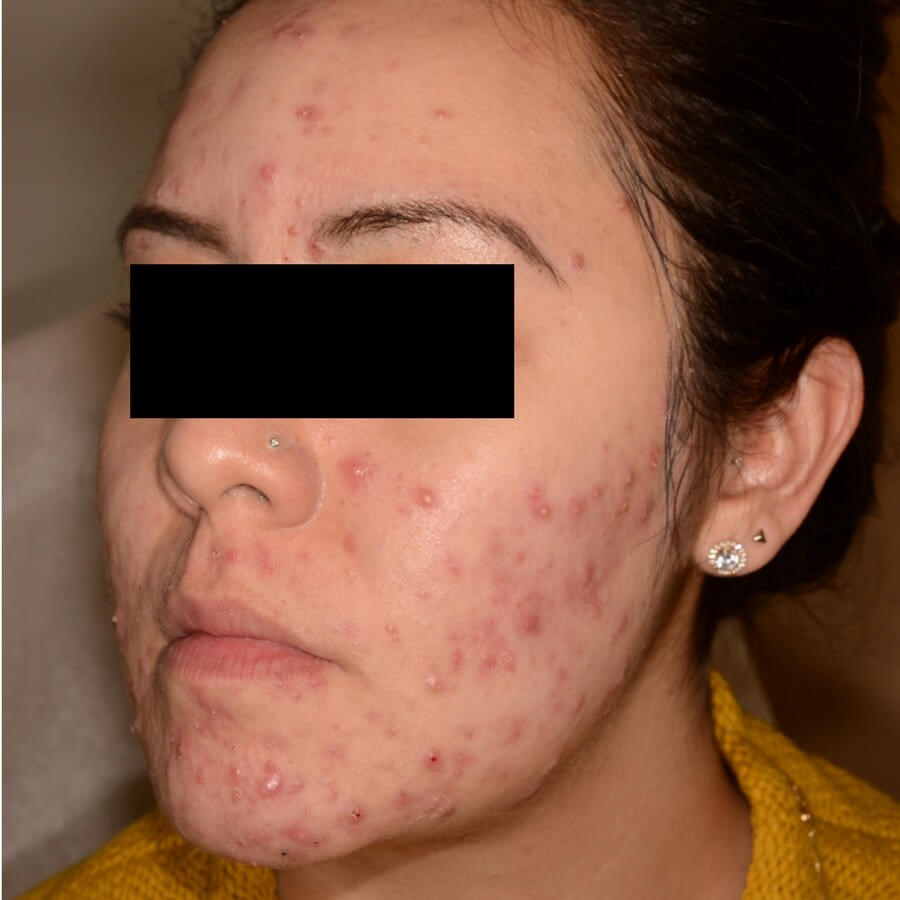 Acne Treatment Before