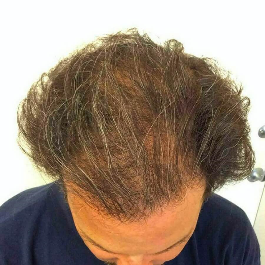 PRP Treatment for Hair Loss Before