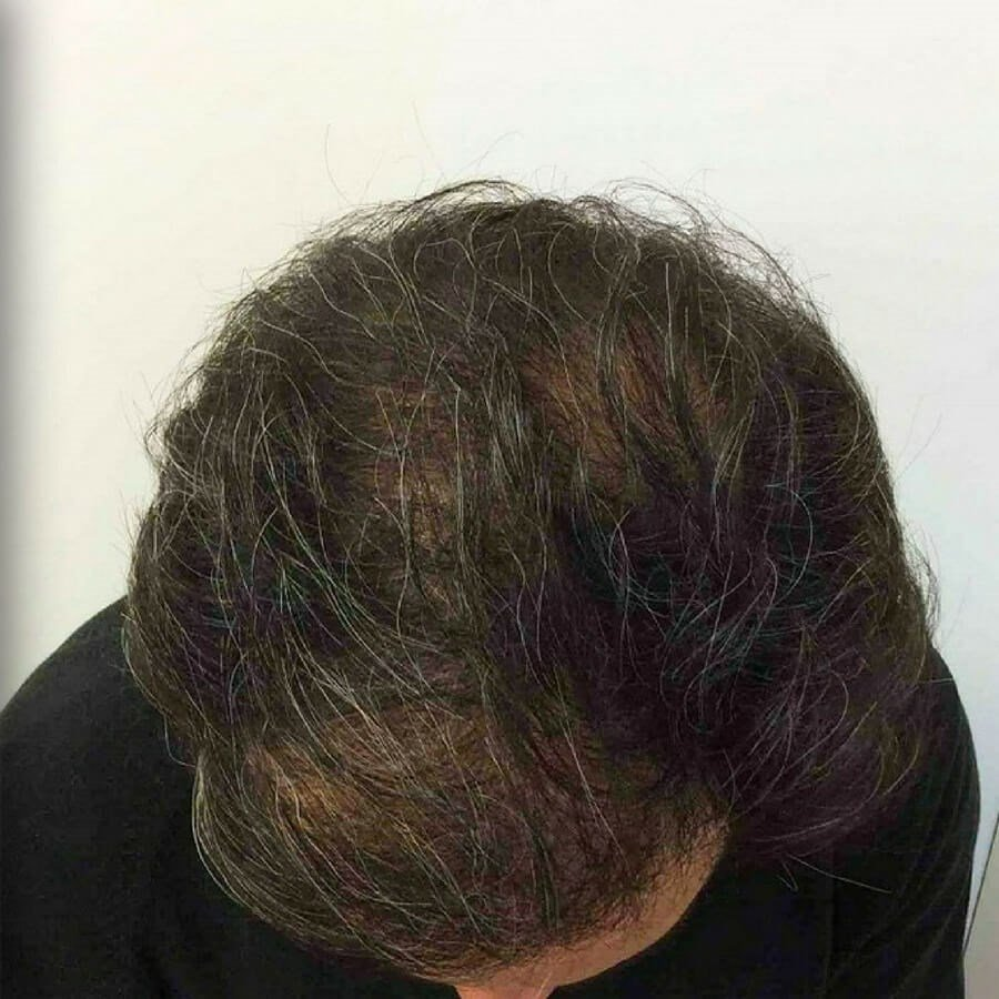 PRP Treatment for Hair Loss After