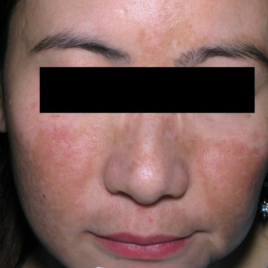 Melasma Minimized in 6 Weeks Before