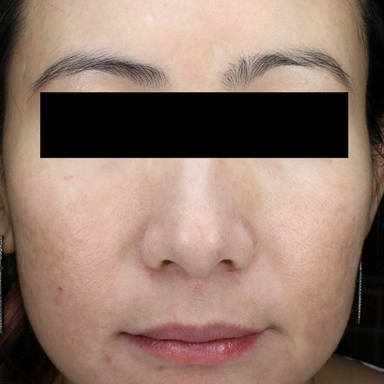 Melasma Minimized in 6 Weeks After