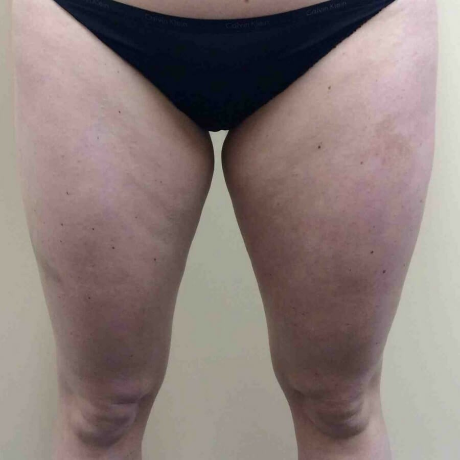 CoolSculpting Inner Thighs Front of Inner Thighs