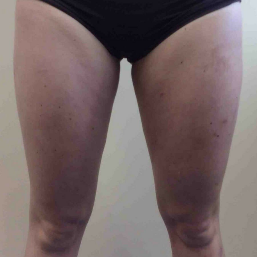 CoolSculpting Inner Thighs Back of Inner Thighs
