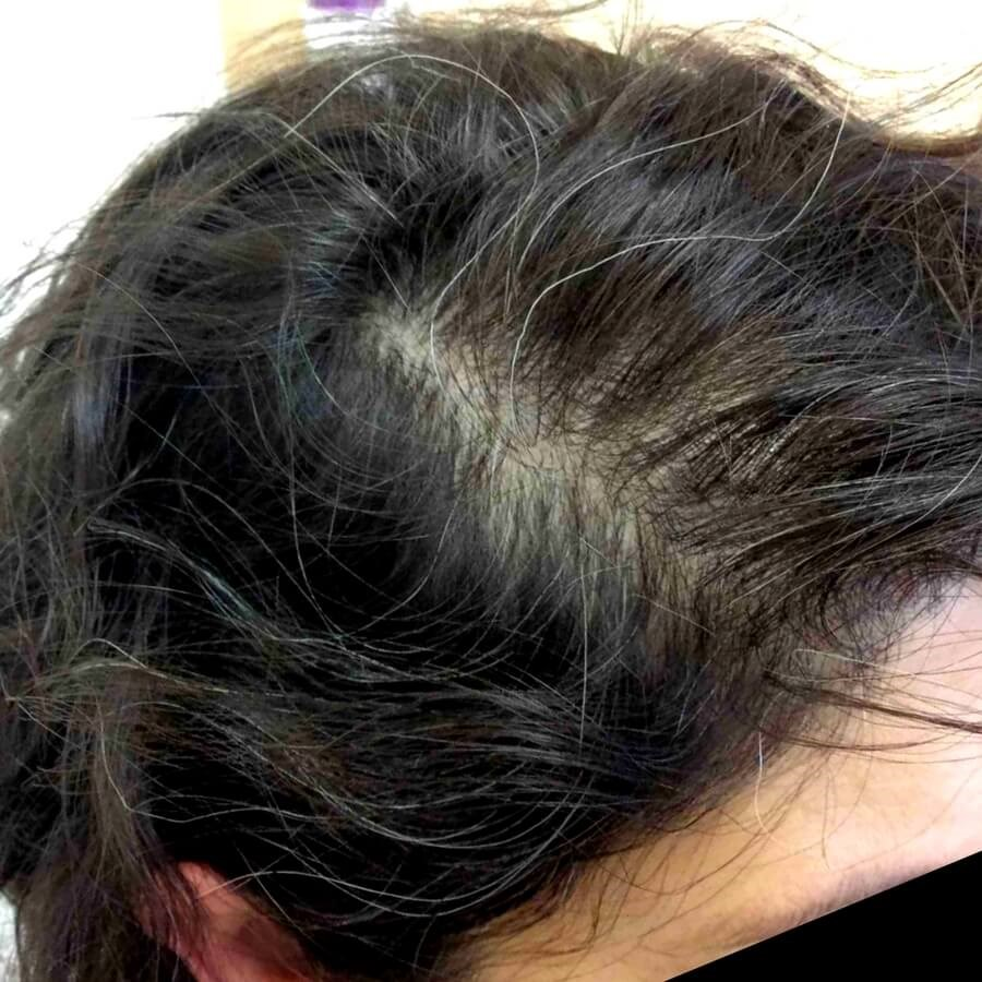 Hair Loss Treatment Before