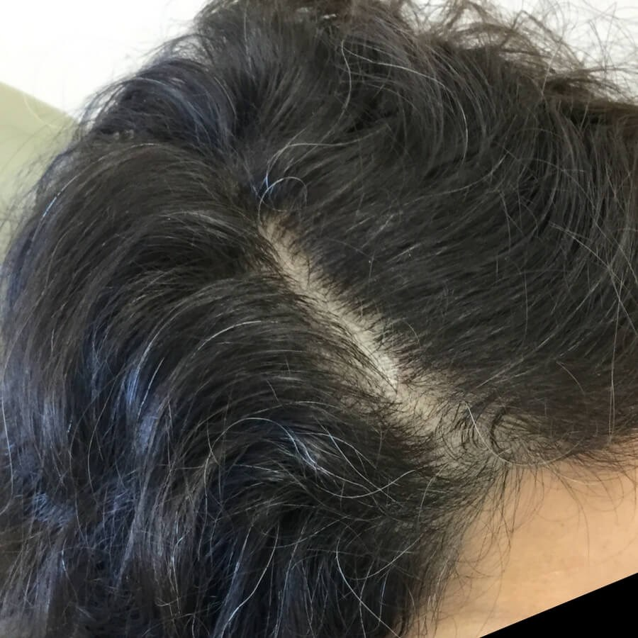 Hair Loss Treatment After