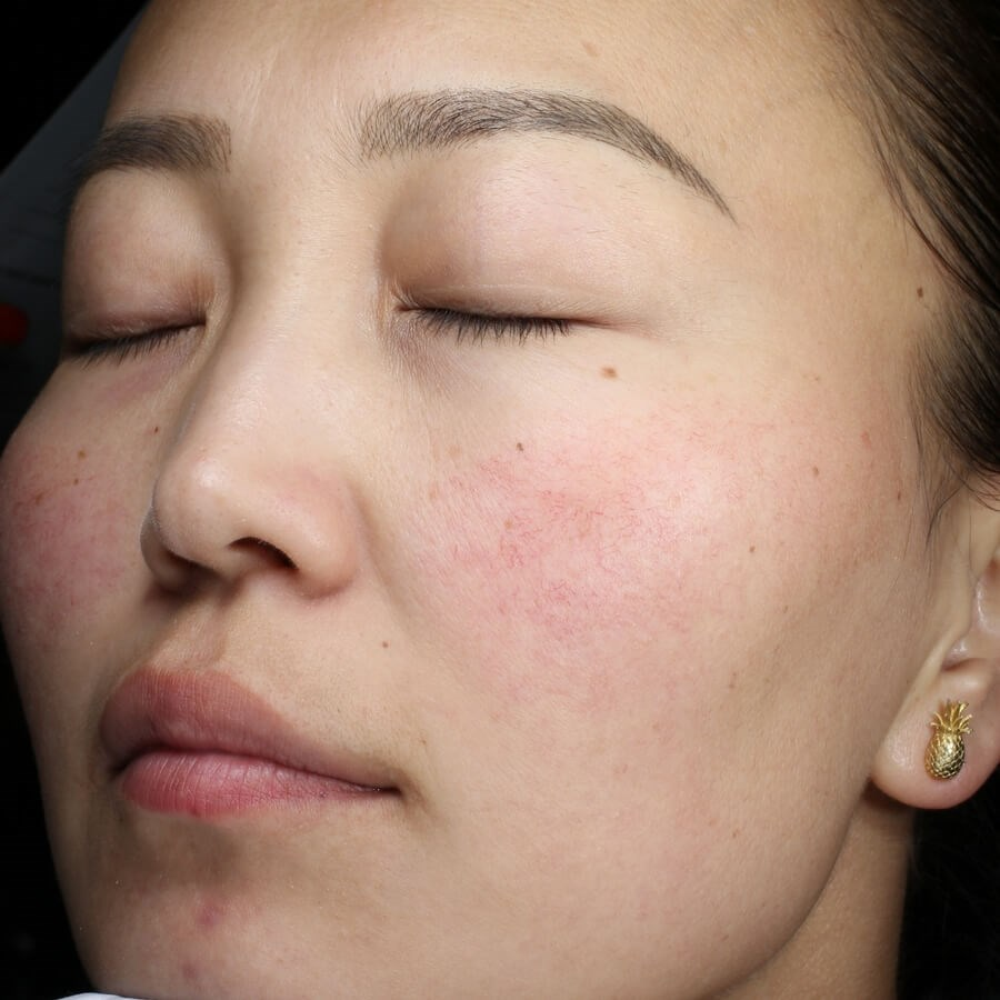 Rosacea Reduction Before