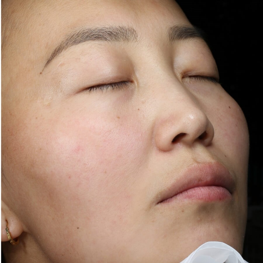 Rosacea Reduction After