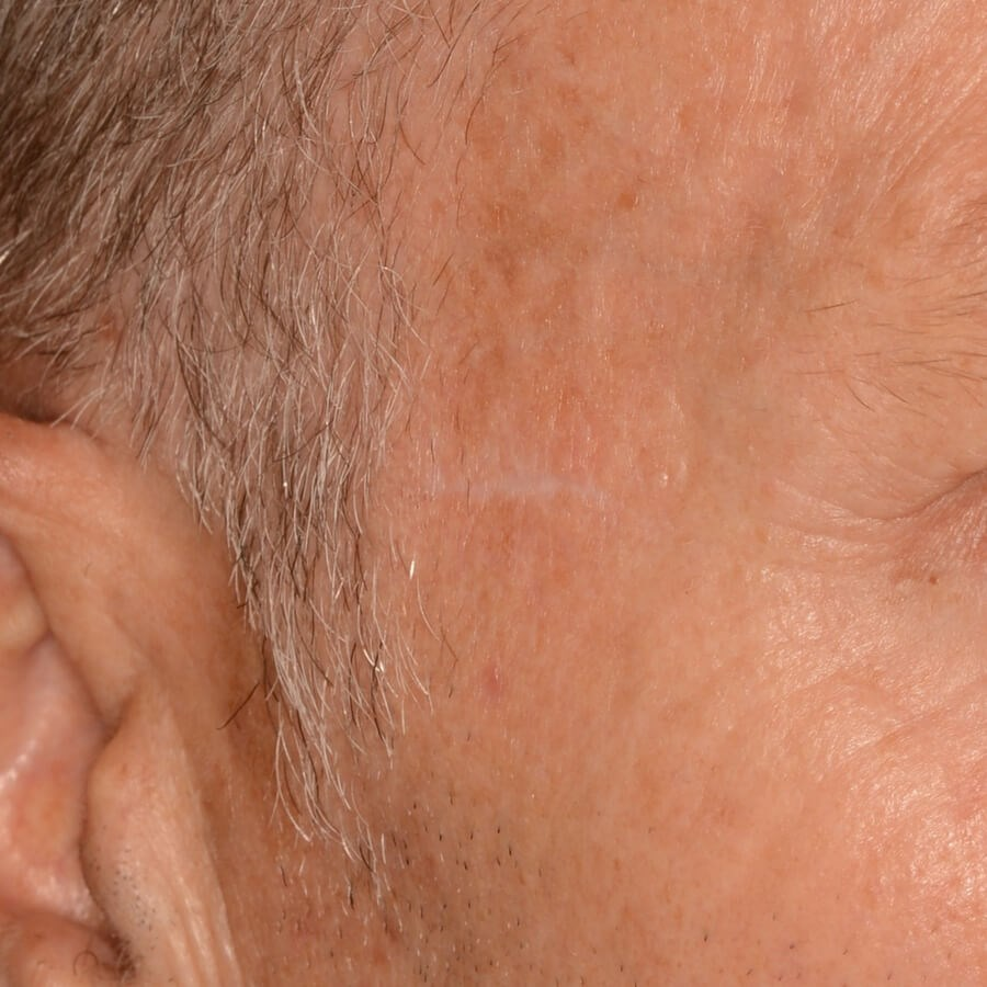 Biopsy Scar Treatment After