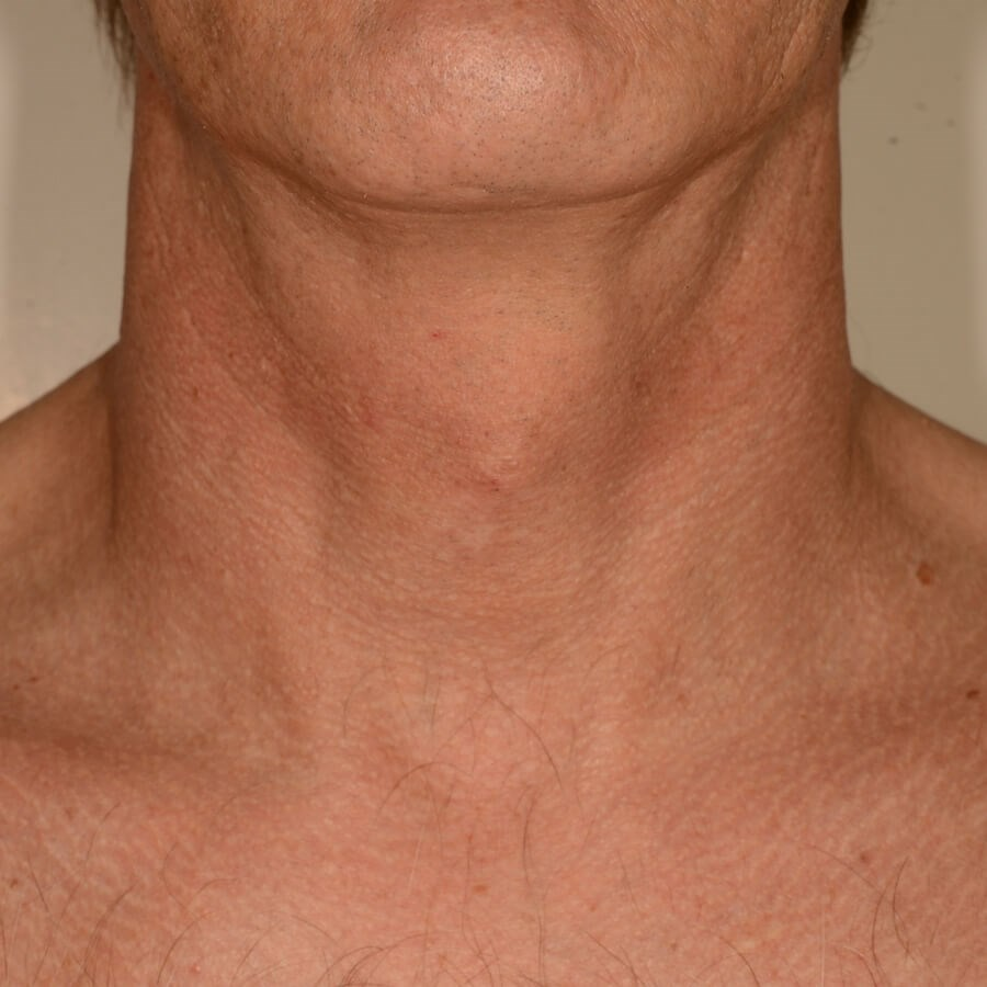 Fraxel Repair for Neck Lines After