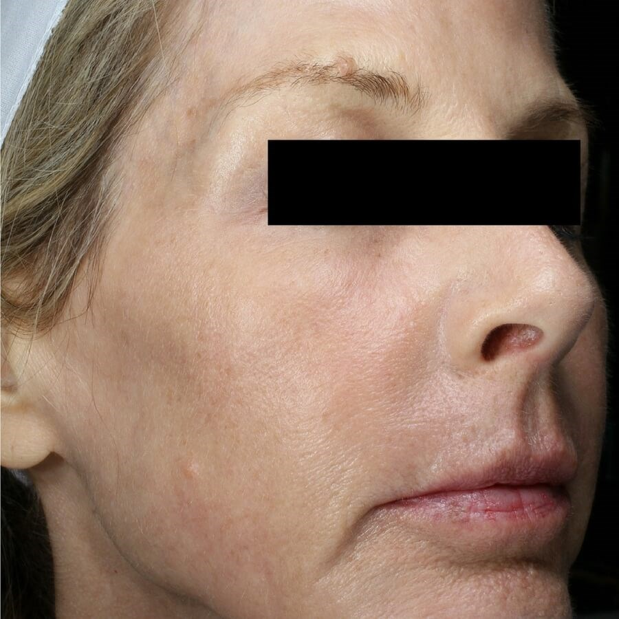Fraxel Repair Face and Neck After