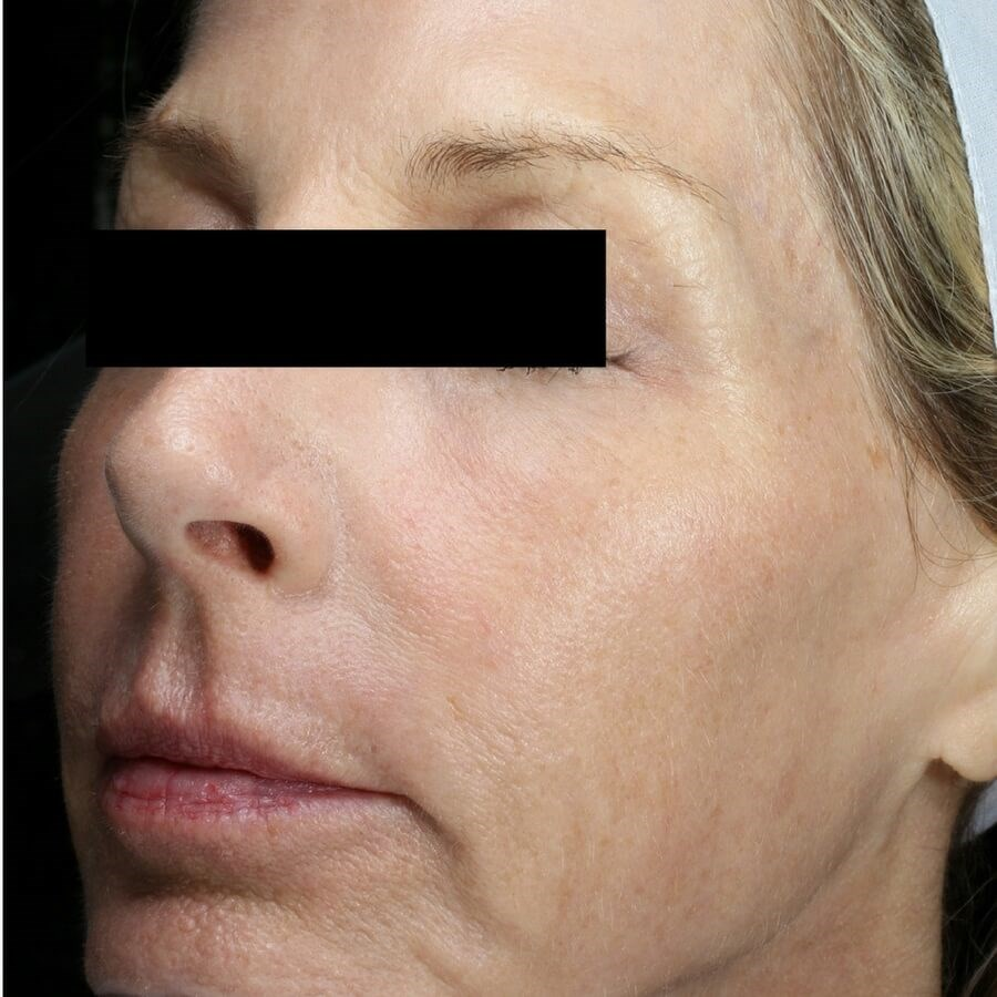 Fraxel REPAIR, Face + Neck After
