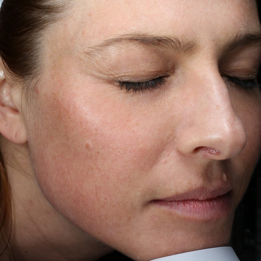 Fraxel Repair for Redness Before