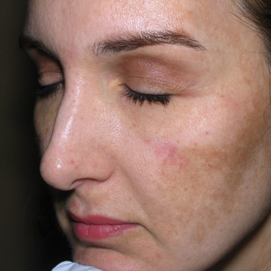 Melasma Improvement Before