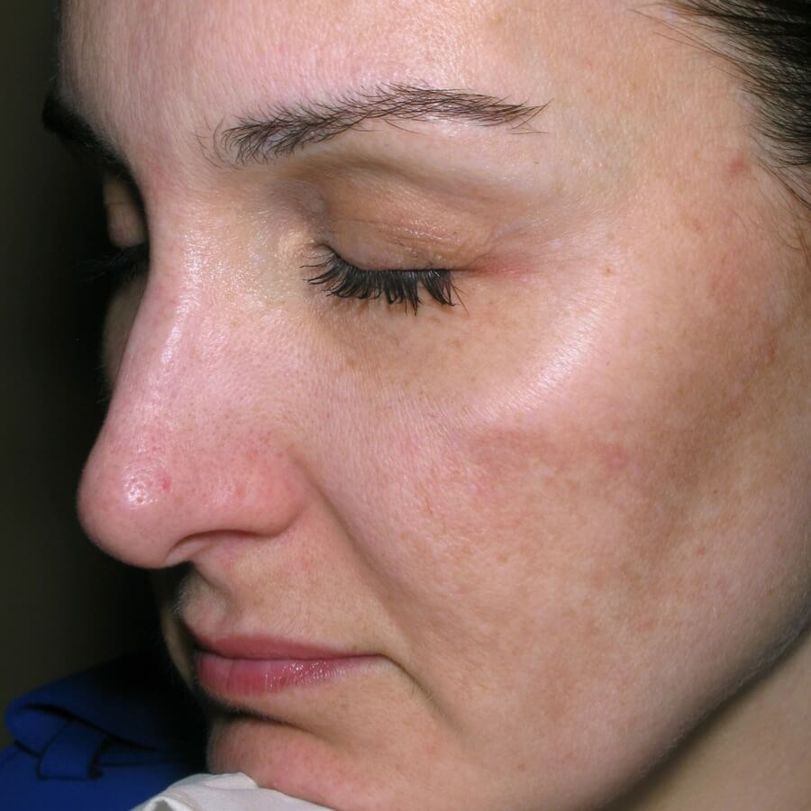 Melasma Improvement After