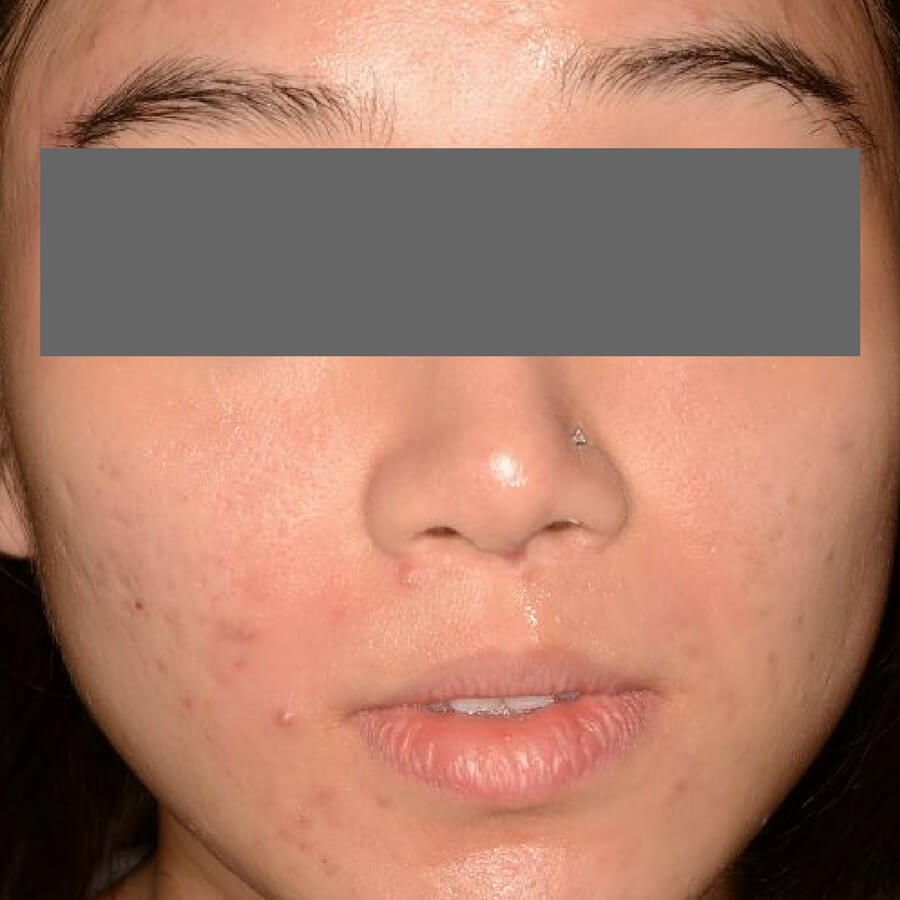 Acne and Acne Scar Treatment Before
