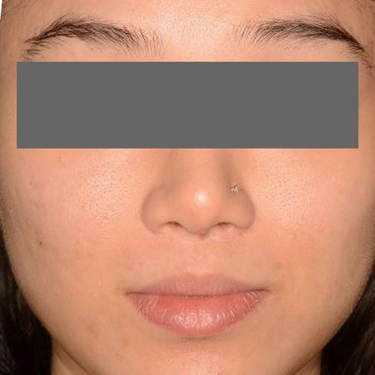 Acne and Acne Scar Treatment After