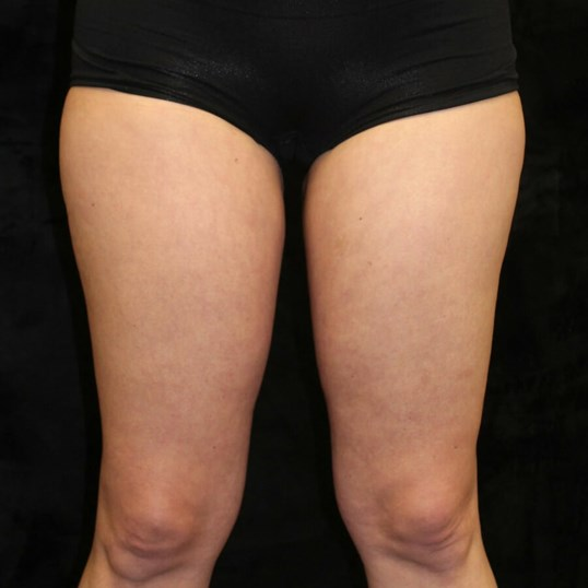CoolSculpting Inner Thighs After