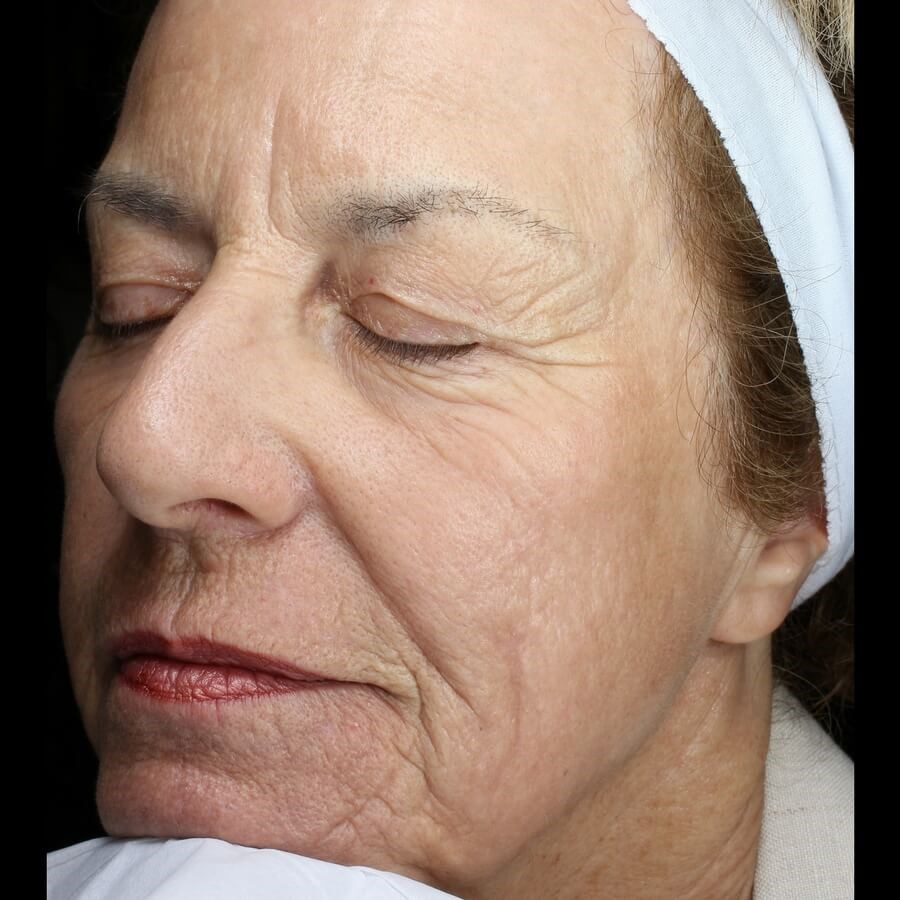 Fraxel REPAIR, Face After