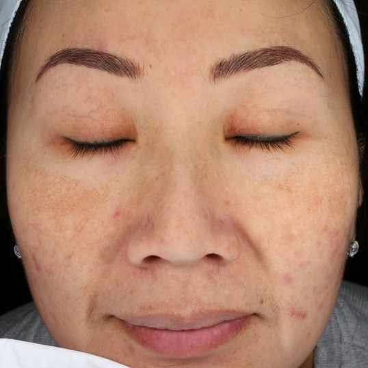 Melasma -  San Francisco After