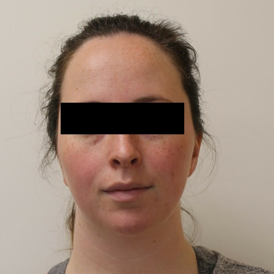 Before and After Kybella After