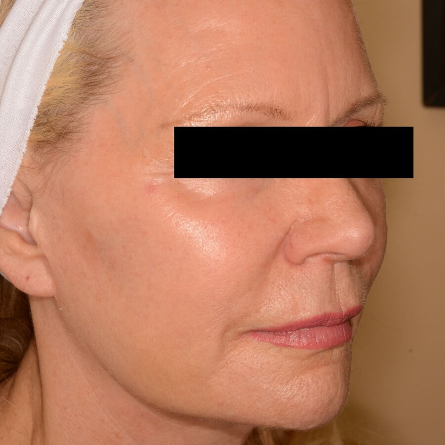 Fraxel Repair Full Face After