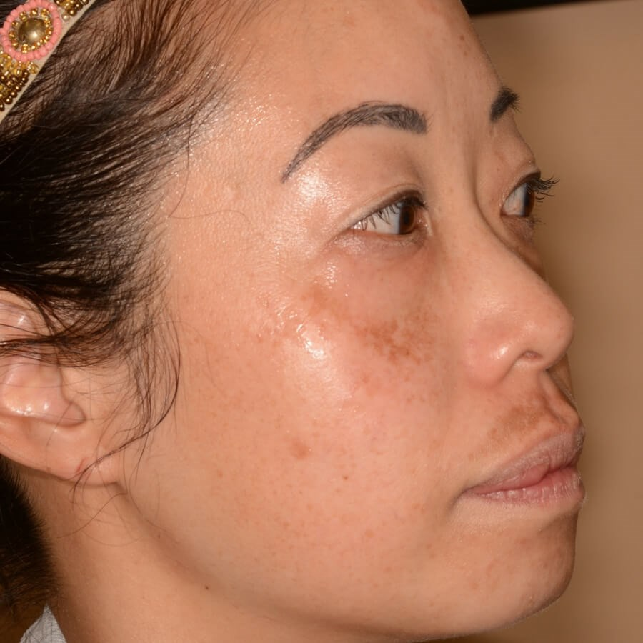 Melasma  - San Francisco Before