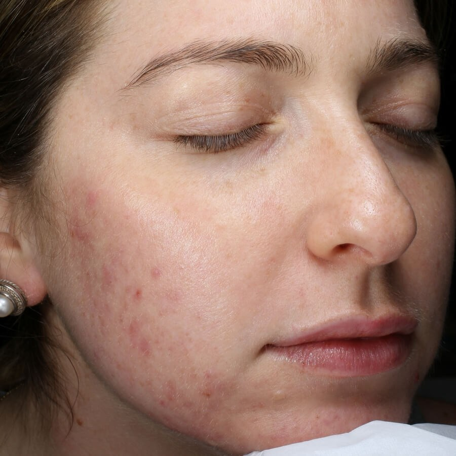 Acne Signicantly Reduced Before