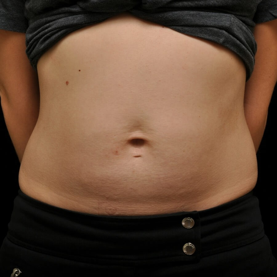 CoolSculpting  Abdomen, Female Before