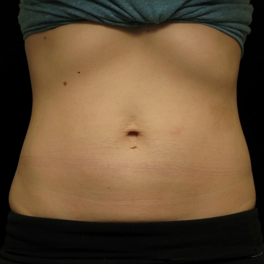 CoolSculpting  Abdomen, Female After