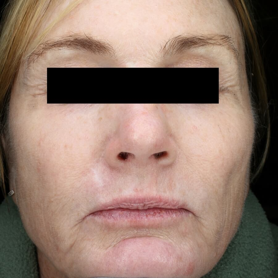 Fraxel Repair Treats Wrinkles Before