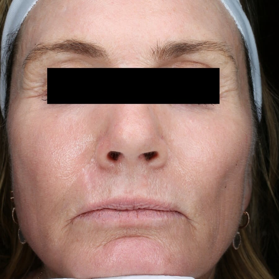 Fraxel Repair Treats Wrinkles After