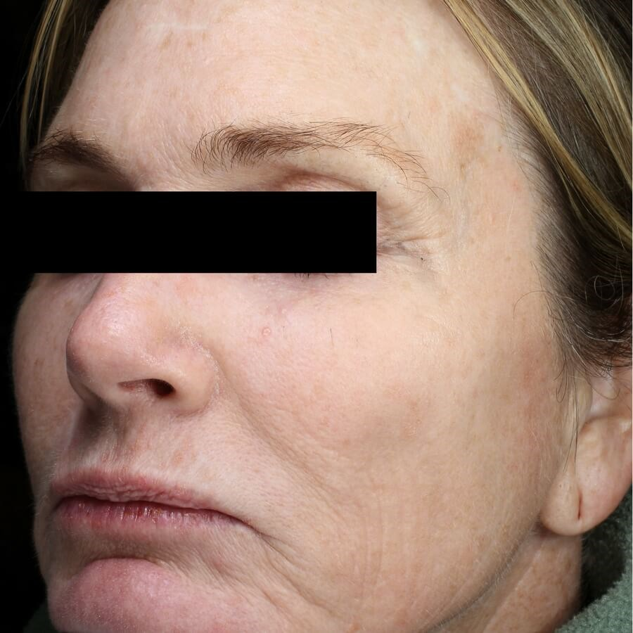 Rejuvenated Skin from Fraxel Before