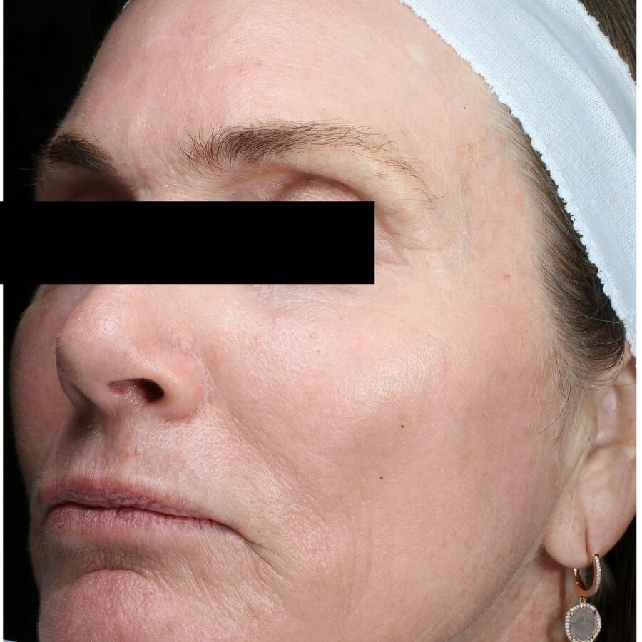 Rejuvenated Skin from Fraxel After