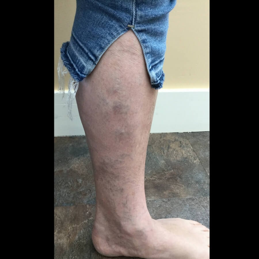 Lower Leg Vein Treatment Before