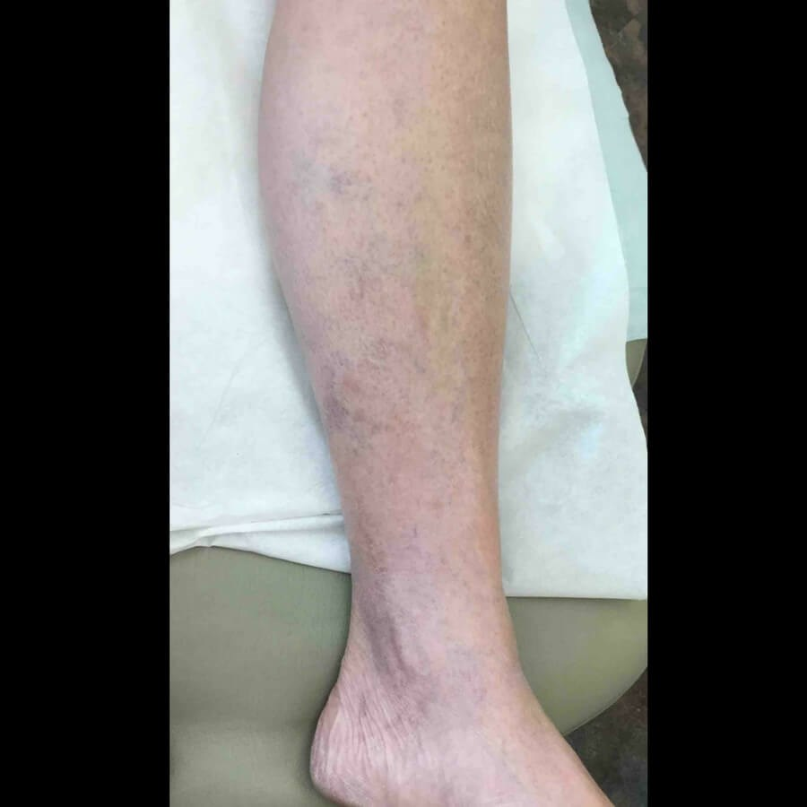 Lower Leg Vein Treatment After