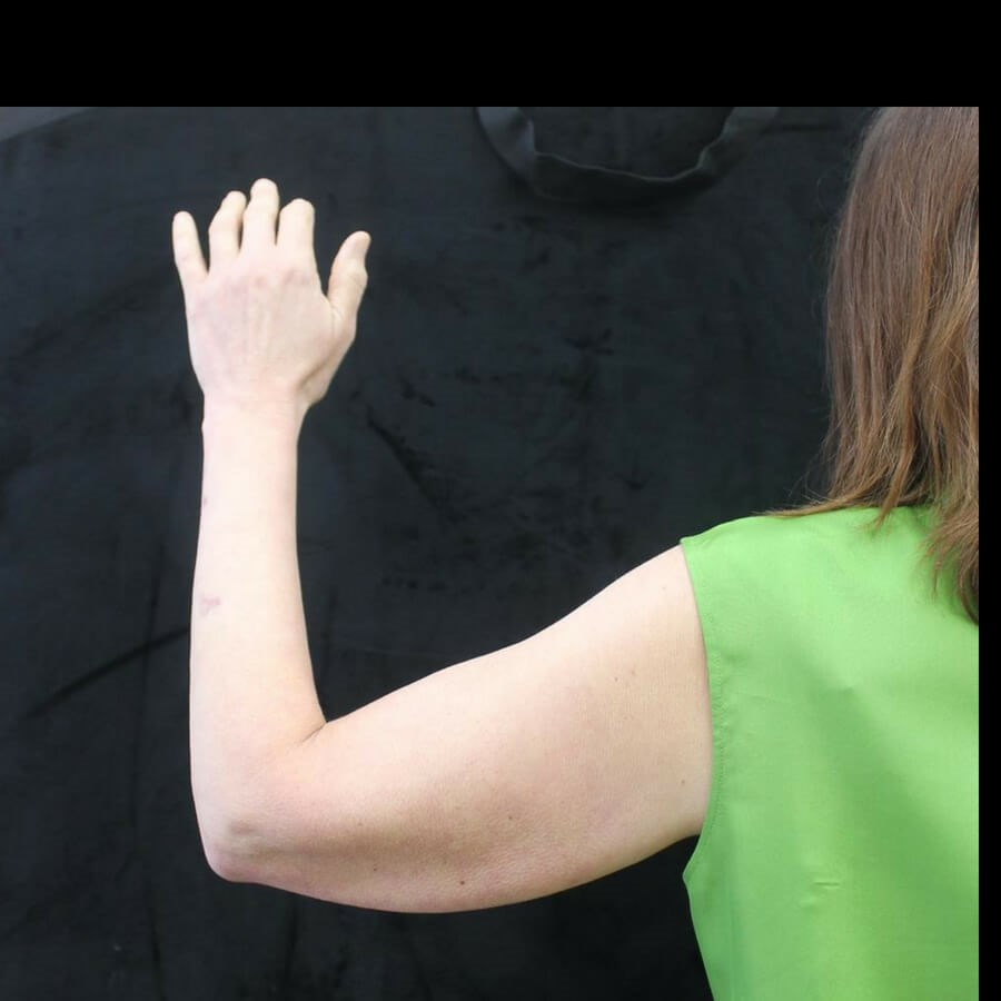 Wave Goodbye to Under Arm Fat Before
