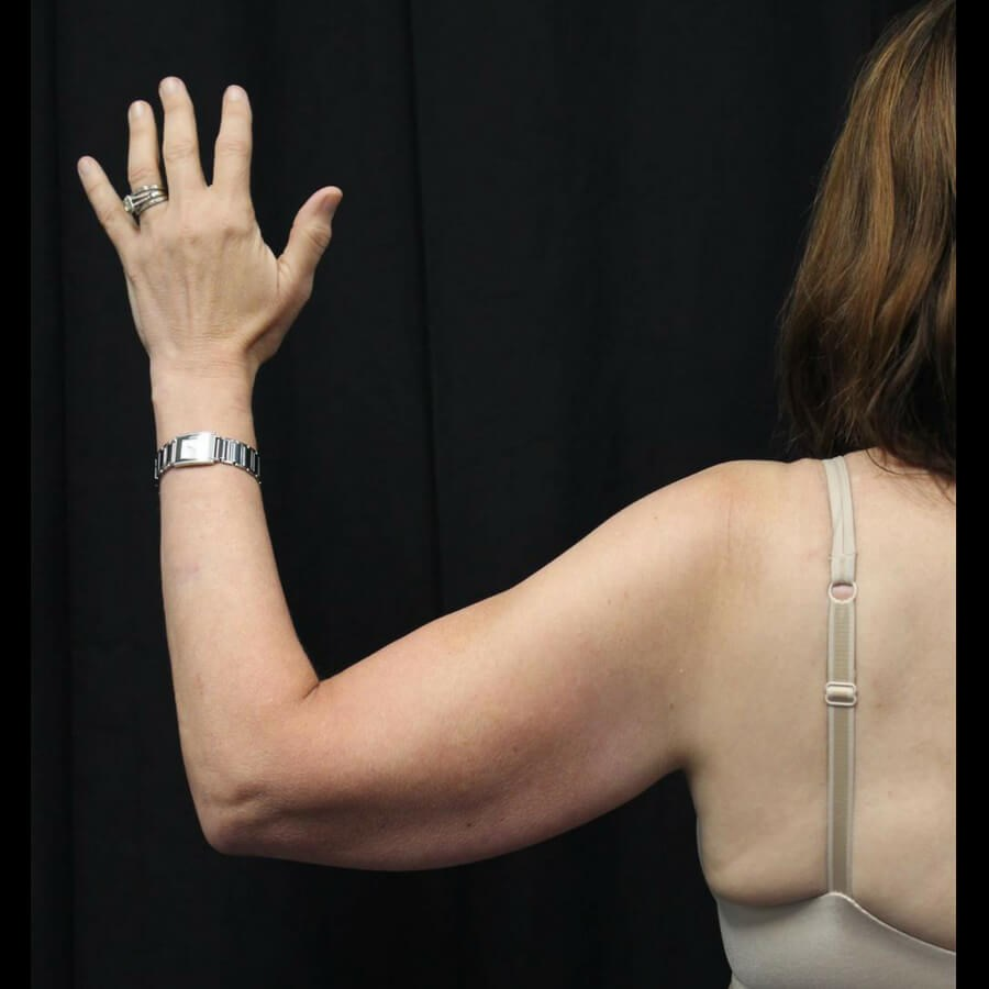 Wave Goodbye to Under Arm Fat After
