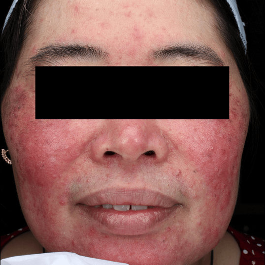 Amazing Rosacea Results! Before