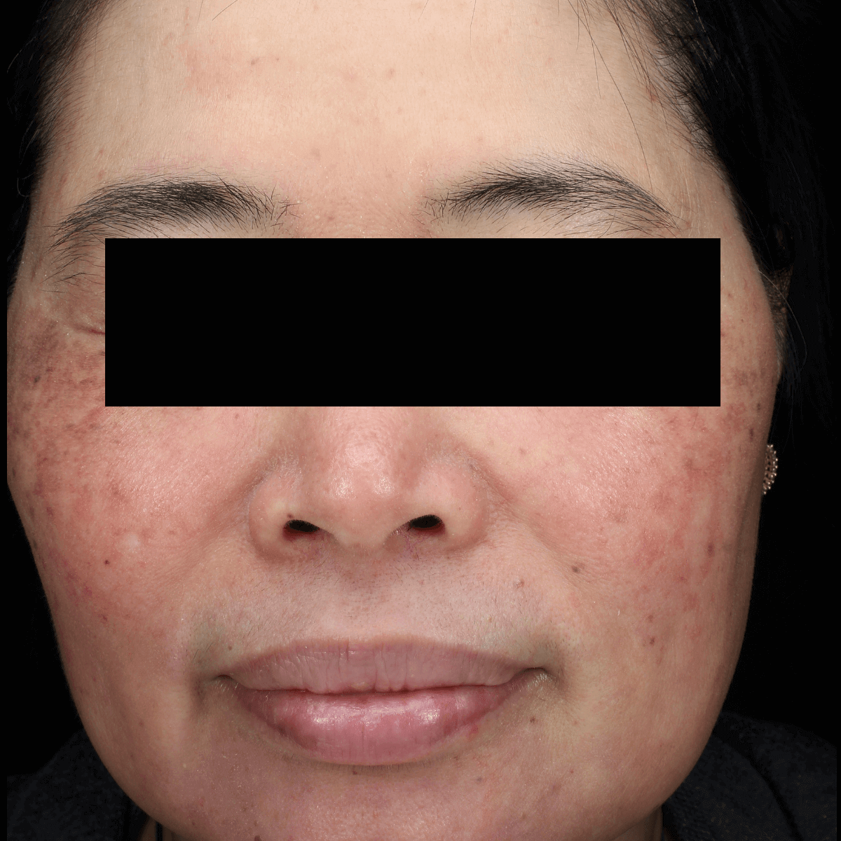 Amazing Rosacea Results! After