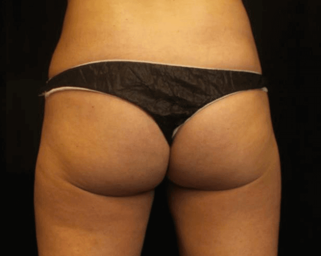 Emsculpt for Buttocks Before