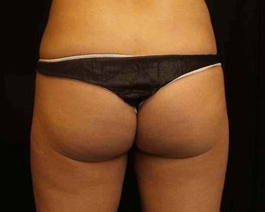 Emsculpt for Buttocks After