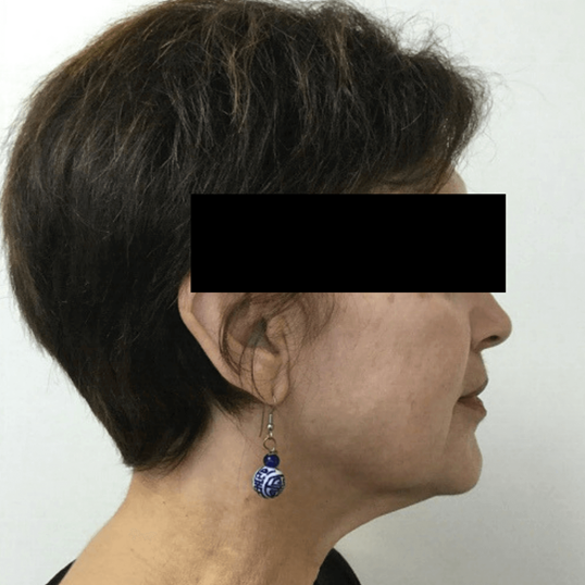 Ultherapy - Lift and Tighten After