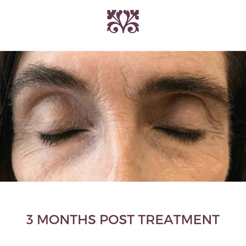 Thermage to Smooth and Tighten After