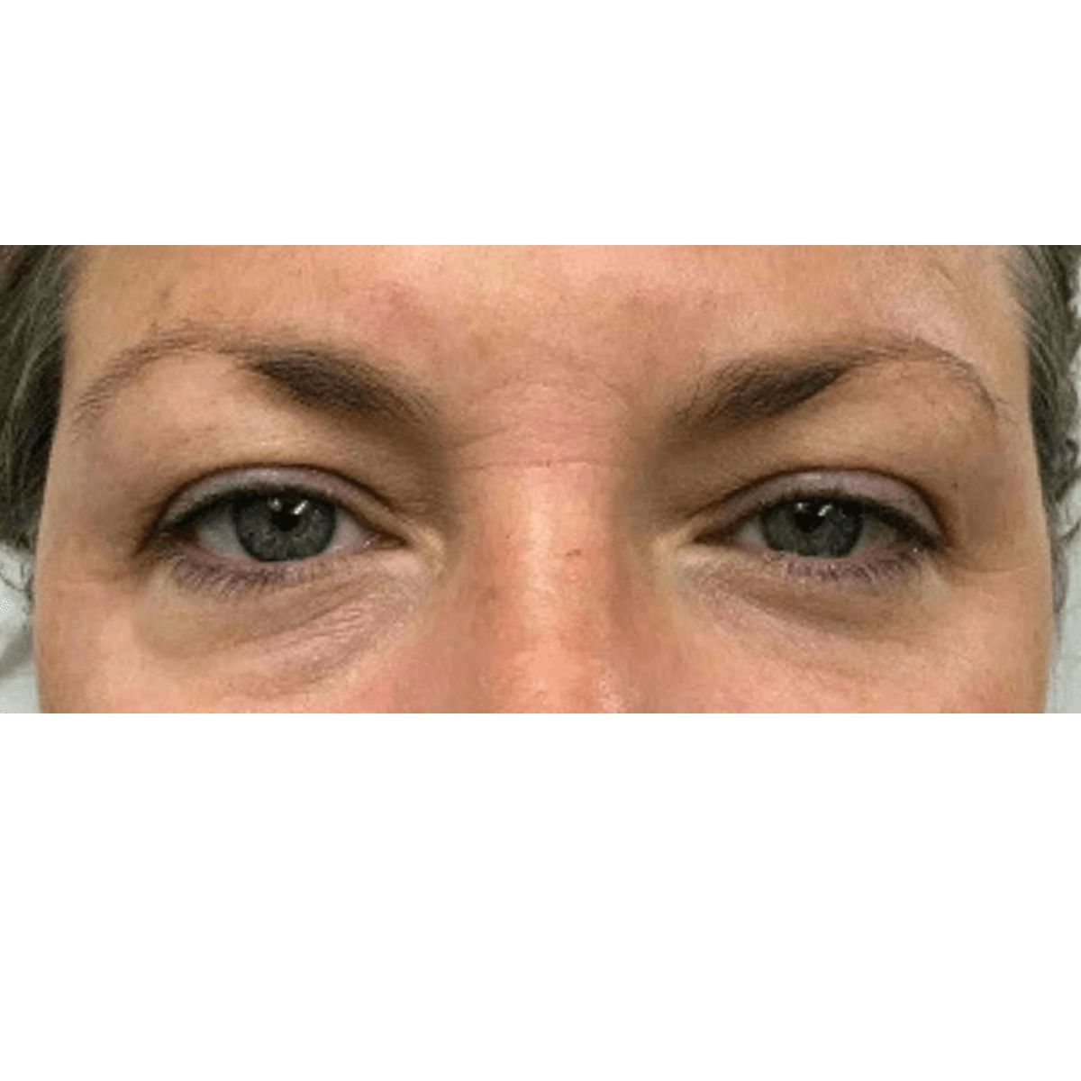 Thermage for Upper EyeLids After