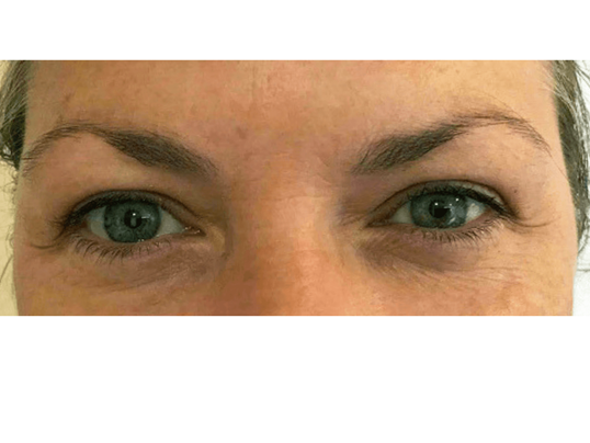 Thermage for Upper EyeLids Before