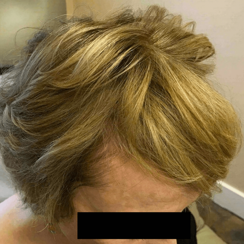 New Thicker Hair Growth After