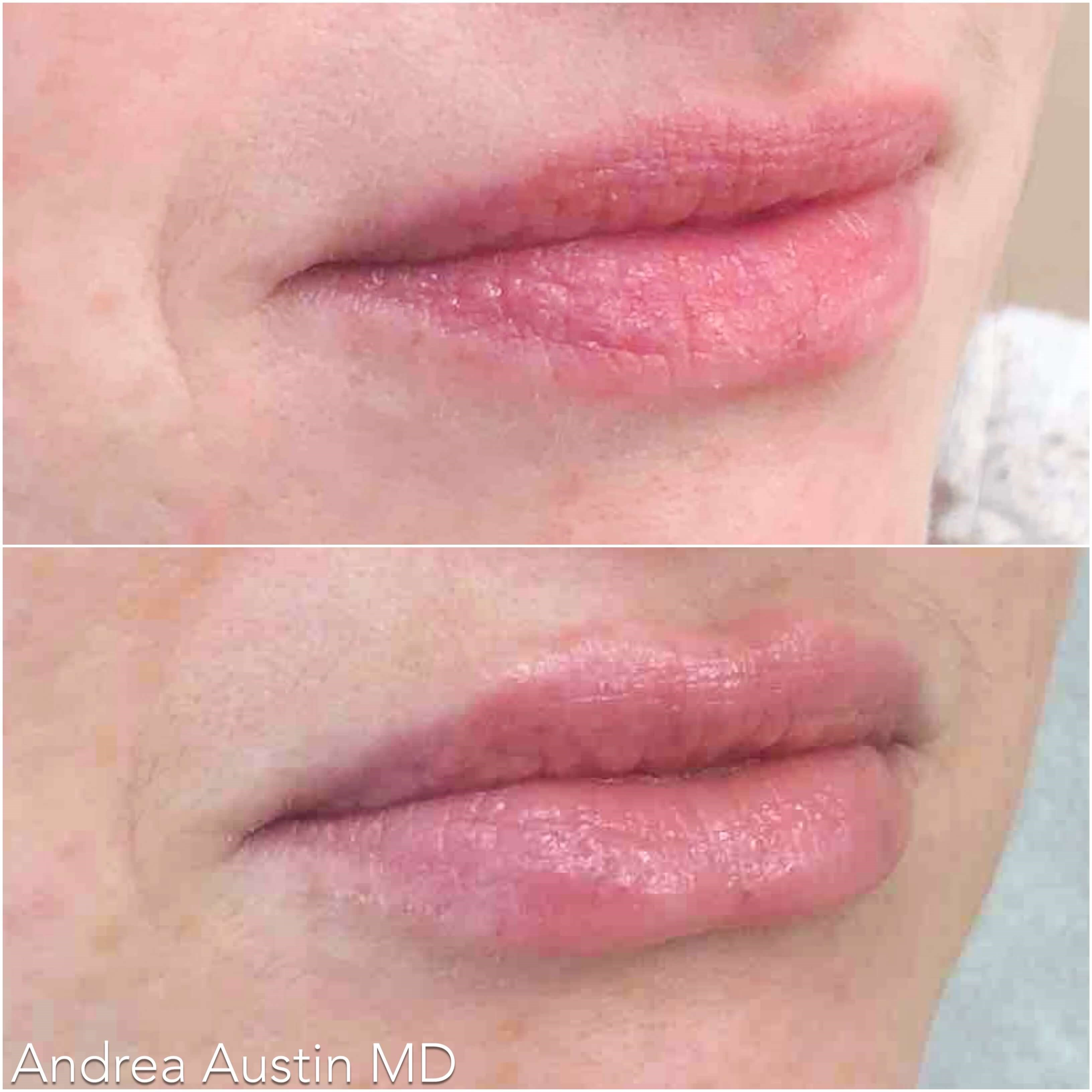 Lip Line Defined Before