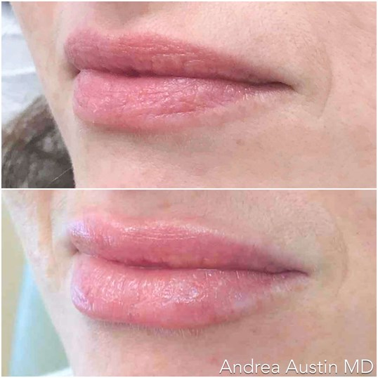 Lip Line Defined After