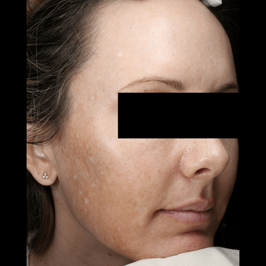 Melasma Treatment Before